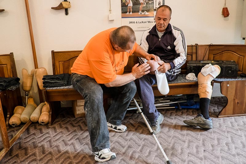 Muris Cizmic is fitted with a new prosthesis at the Orthopedic Workshop in Zavidovici