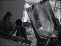 Airborne, A Struggle to Survive Tuberculosis