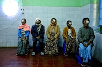 Cataract surgery patients at Pyin U Lwin Eye Centre